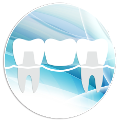 dental-crowns-motzkin