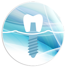 dental-implants-motzkin
